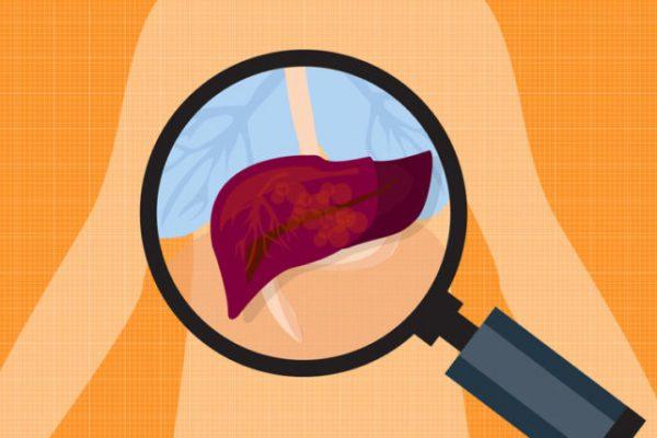 prevent liver toxicity